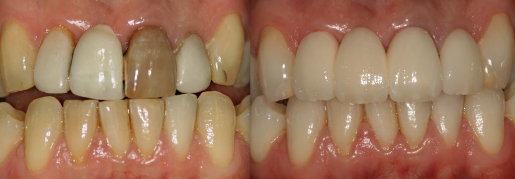 Bridges Sutton Coldfield | Dentist Sutton Coldfield